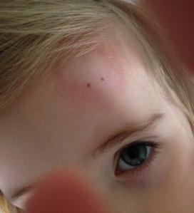 bruiser close up
